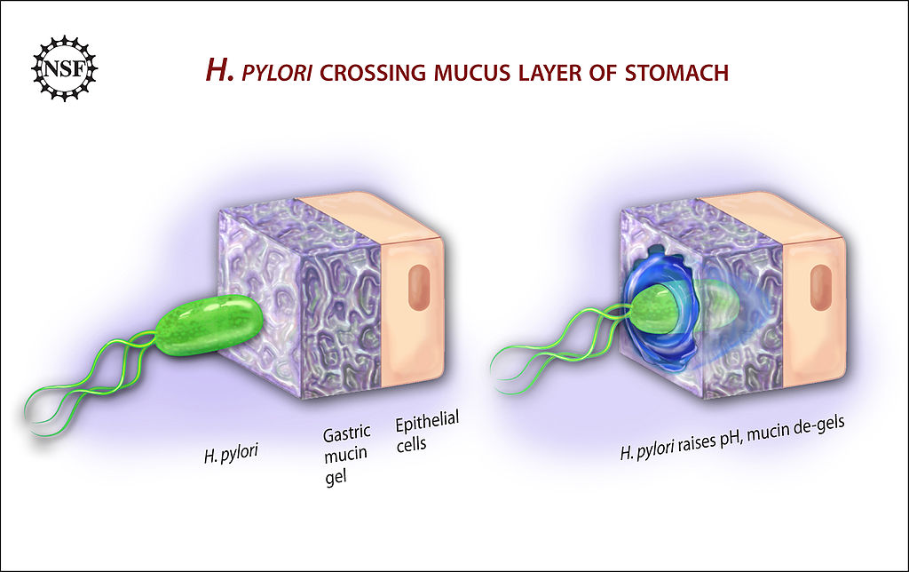 H. pylori burrows into the stomach mucosa.