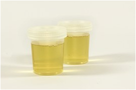 Urine test for Alzheimer's?