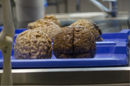 Infectious protein 'seeds' lead to Alzheimer's brain?