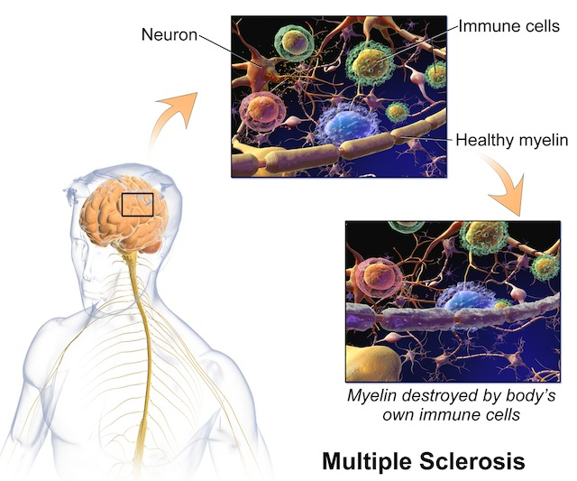 One of the three main characteristics of MS is the destruction of neurons' myelin sheaths. (Inflammation and central nervous system lesions are the other two.)