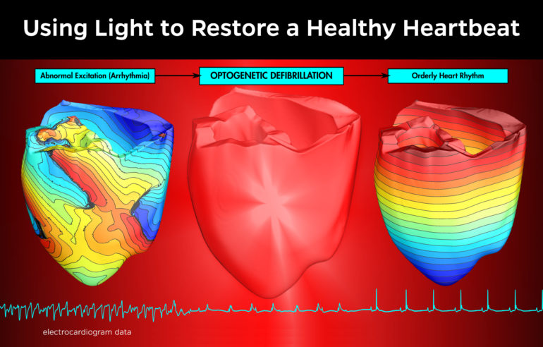 The illustration shows EKG readings before, during, and after the use of light-optogenetic defibrillation-to restore a normal heartbeat to an arrhythmic heart. (Credit: Patrick M. Boyle/JHU)