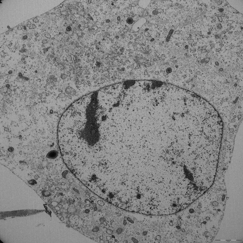A fibroblast undergoing ferroptosis. / Credit: Source: Helmholtz Zentrum München