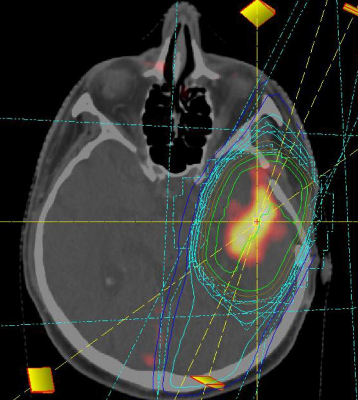 Irradiation planning of a glioblastoma. Image: Klinikum der Universität München