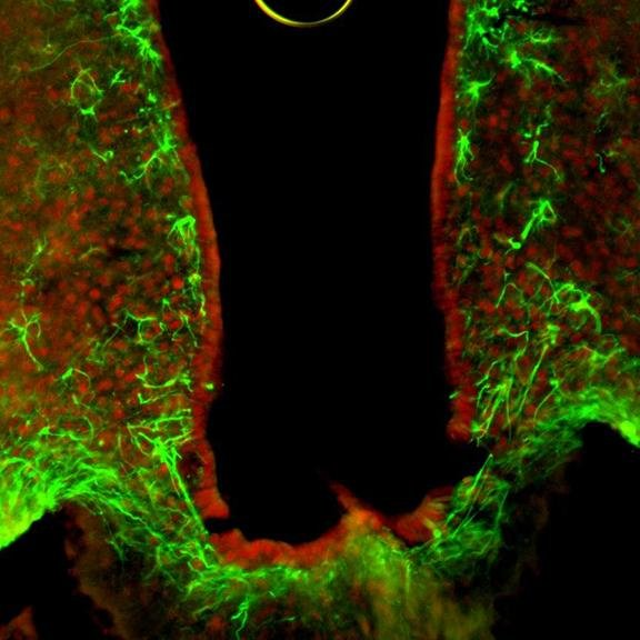 HDAC5 (red) is a key factor in neurons for the control of food intake, astrocytes are stained in green.