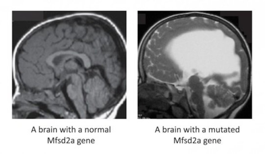 Mutated Mfsd2a gene causes risk for brain impairment (right) or death.