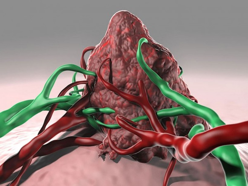 Artist's rendering of a tumor surrounded by blood and lymphatic vessels.