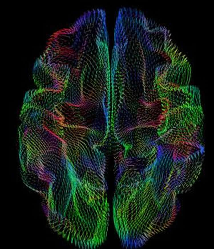 The three-dimensional shape of the cerebral cortex is a predictor of ancestry, say UCSD researchers.