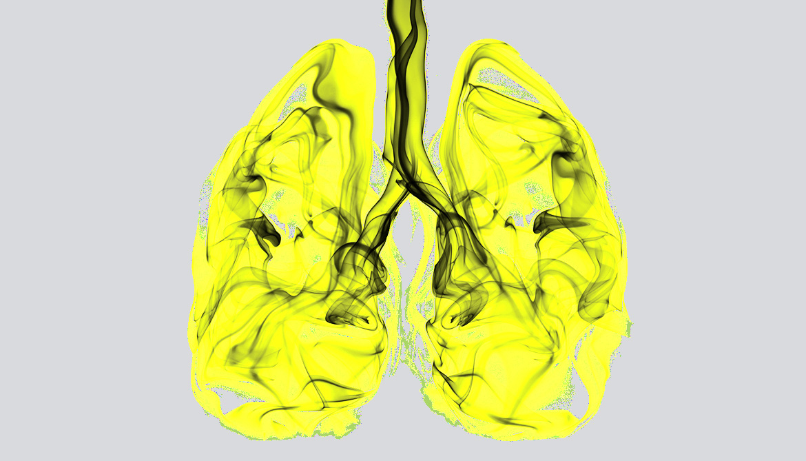 Test finds genomic markers for lung cancer.