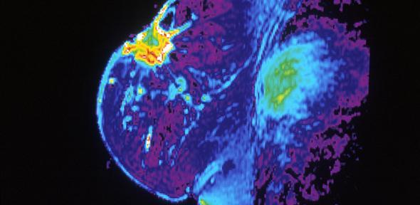 Breast Cancer MRI