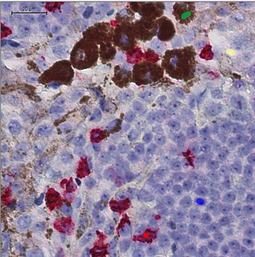 Tissue data, such as from this image of melanoma tissue, hold significant promise for biomarker testing and diagnostics.