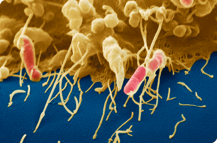 A phagocyte (yellow) uses actin filaments to engulf bacteria (pink).