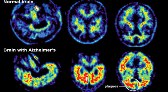 Typical cases of Alzheimer's Disease show large areas of the brain damaged by neurofibrillary tangles and beta-amyloid plaques