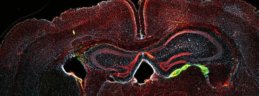 If blood cells can be converted into brain cells, scientists will have a better understanding of pain and how to treat it.