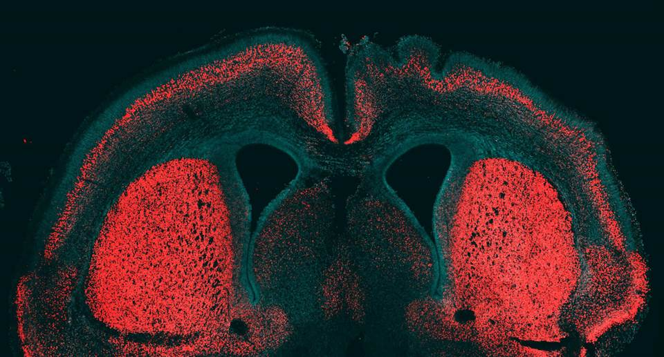 This embryonic mouse cerebral cortex was stained to identify cell nuclei (in blue) and a marker for deep-layer neurons (in red). The human-specific gene known as ARHGAP11B was selectively expressed in the right hemisphere: Note the folding of the neocortical surface.