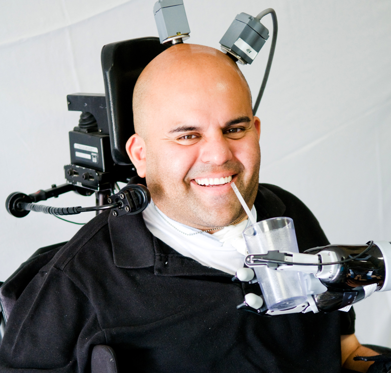Erik Sorto is the first person to try out the new robotic prosthetic arm technology.