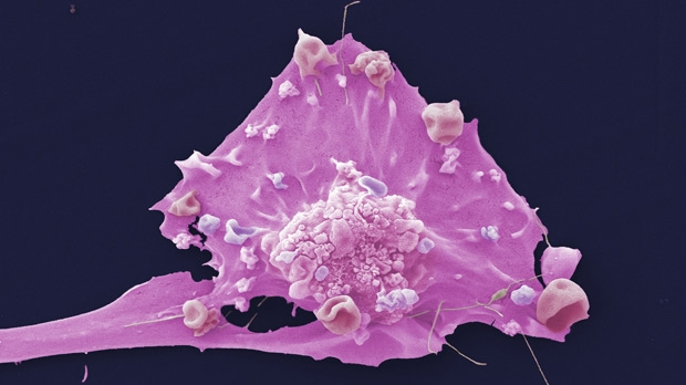 Vascular Mimicry