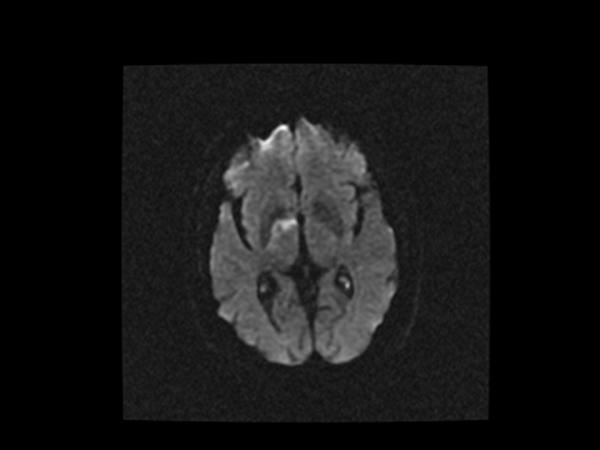 MRI - Lacunar infarct