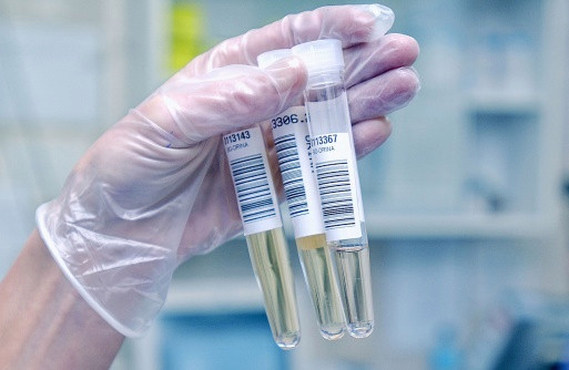 Urine Test Shows Promise in Detection of Cervical Cancer