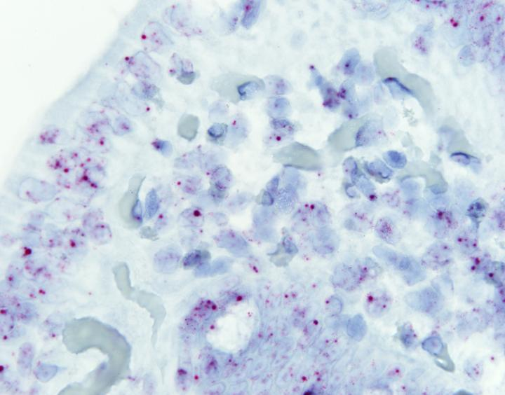 Intestinal cells in a healthy individual where the lnc13 appears in red