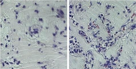 Endothelial cells from growth factors alone (L) VS. growth factors plus glutamine withdrawal (R)