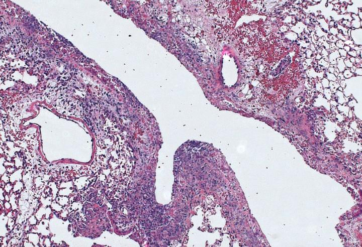 Lung tissue was infected by pneumonia bacteria | Image: Alexandra Bettina