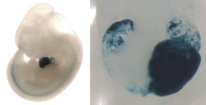 Left: mouse embryo is showing enhancer activity (blue staining) in the developing heart. Right: closeup of this heart showing that the enhancer is active in the left ventricle, left atrium, and right atrium.