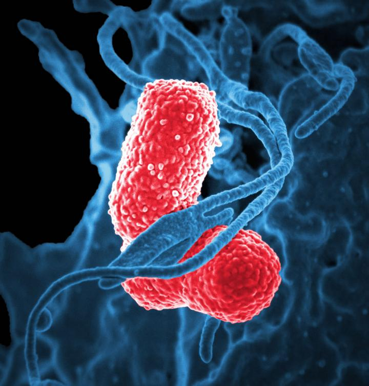 Klebsiella pneumoniae bacterium | Source: CDC Public Health Image Library