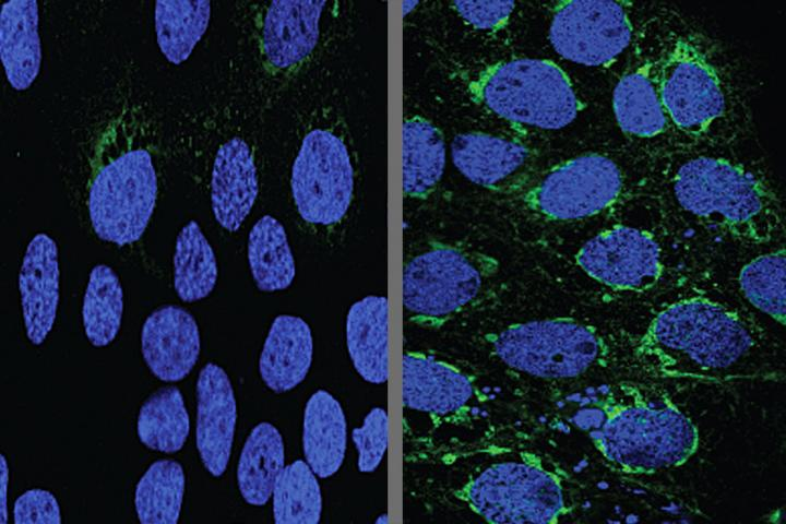 Human placental cells (blue) infected with Zika virus (green) responded to the malaria drug chloroquine (left). Credit: Bin Cao