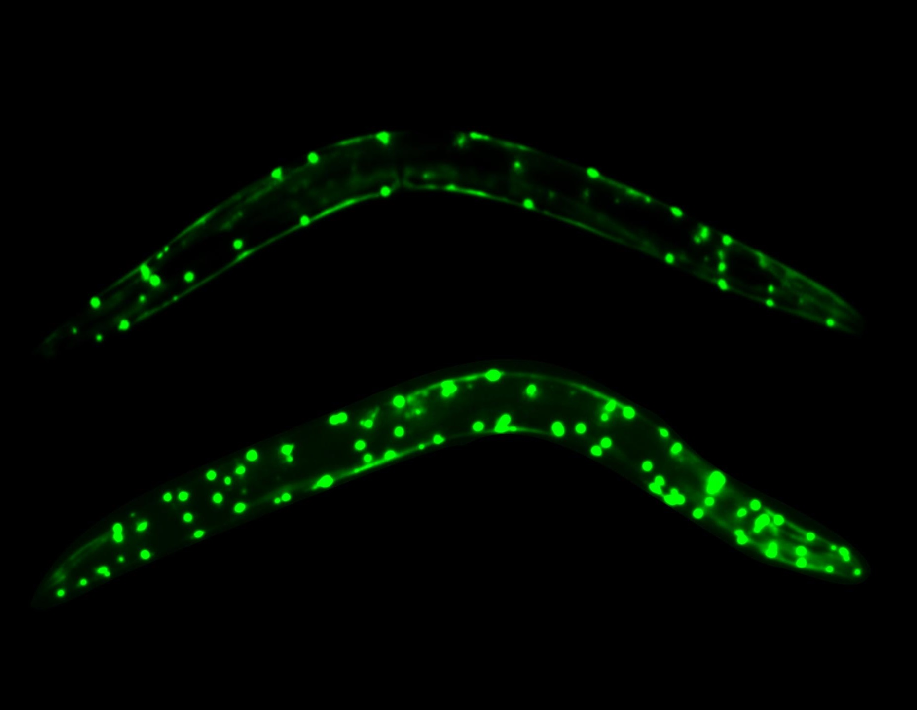 When you decrease autophagy the disease process is exacerbated and when you increase it you get the opposite effect. Aggregation of polyglutamine expansion protein is a hallmark of Huntington's disease and other neurodegenerative diseases. The picture shows that there are more aggregates of green fluorescence protein-labelled polyglutamine expansion protein in autophagy deficient worms (bottom) compared to normal animals (top). Credit: Florida Atlantic University
