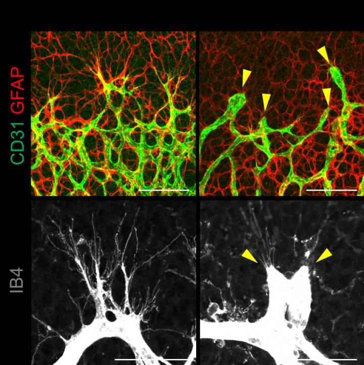 New blood vessels branch out of the main one like thin extensions (right). Normal tissue (right) is compared with tissue lacking YAP/TAZ (left), where the pruned-looking branching are not able to develop. Credit: IBS