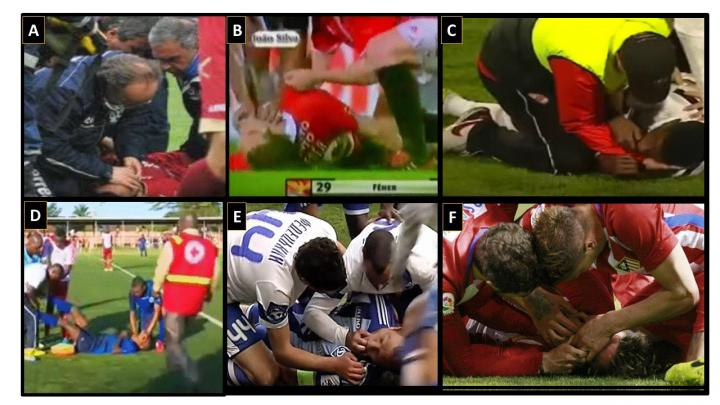 These are eamples of athletes undergoing rescue maneuvers that include interventions to prevent tongue swallowing. Credit: Viskin