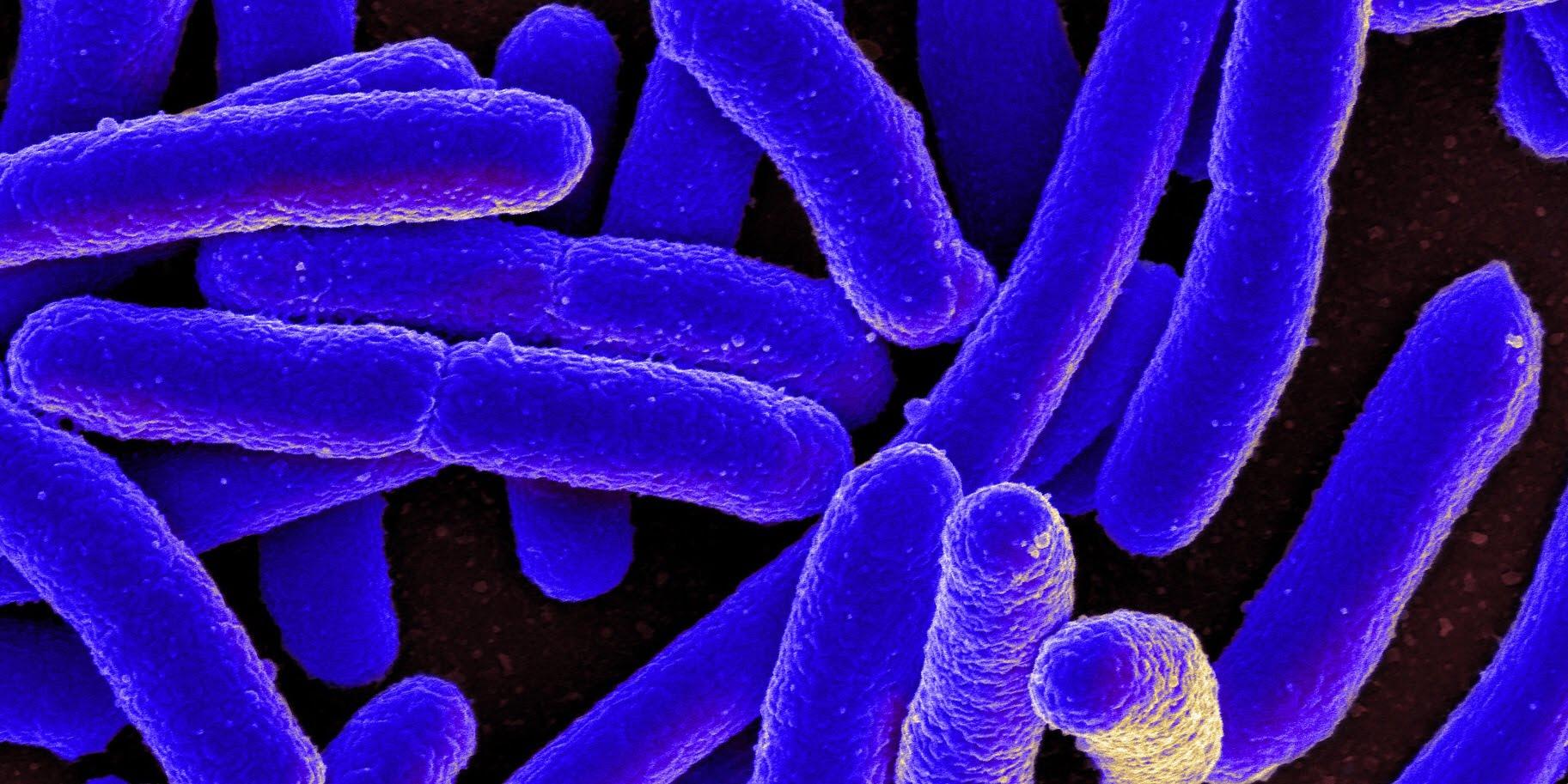 Scanning electron micrograph of Escherichia coli, Credit: NIAID, NIH