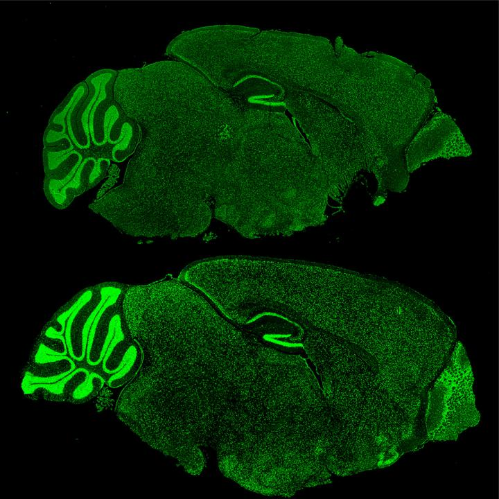 Mouse brains with Fragile X Syndrome (lower) lose the ability to regulate proteins like Brd4 (green). / Credit/copyright: The Rockefeller University