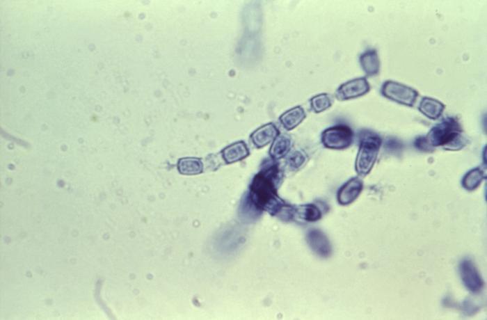 Coccidioides immitis fungal arthrospores / Credit: CDC/ Brinkman