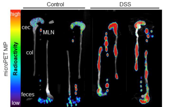Ex vivo PET/CT scan. Credit: AC Freise et al., David Geffen School of Medicine, UCLA, Los Angeles, CA.