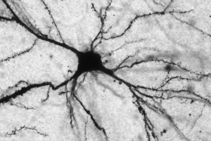 Acetyl-L-carnitine acts on neurons (pictured here) that release the neurotransmitter glutamate. / Credit: Harold and Margaret Milliken Hatch Laboratory of Neuroendrocrinology at The Rockefeller University