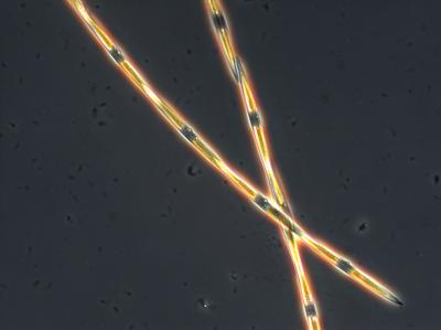 This is a microscopic view of domoic acid producing Pseudo-nitzschia diatom in a seawater sample from Monterey Bay, Calif. This diatom species, when in active growth typically typically forms long chains of individual cells. / Credit: G. Jason Smith at Moss Landing Marine Labs.