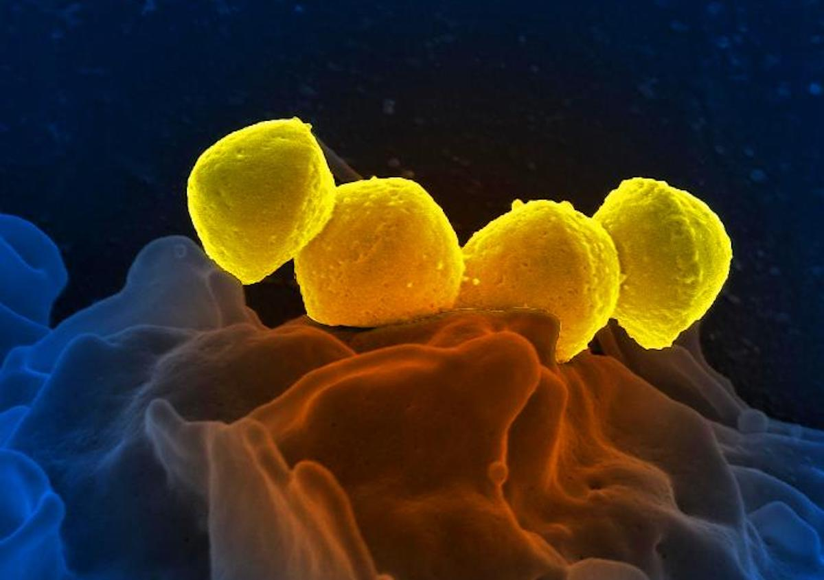 Digitally colorized scanning electron microscopic image depicting four, yellow colored, Group A Streptococcus, Streptococcus pyogenes bacteria, atop the surface of a human white blood cell / Credit: National Institute of Allergy and Infectious Diseases