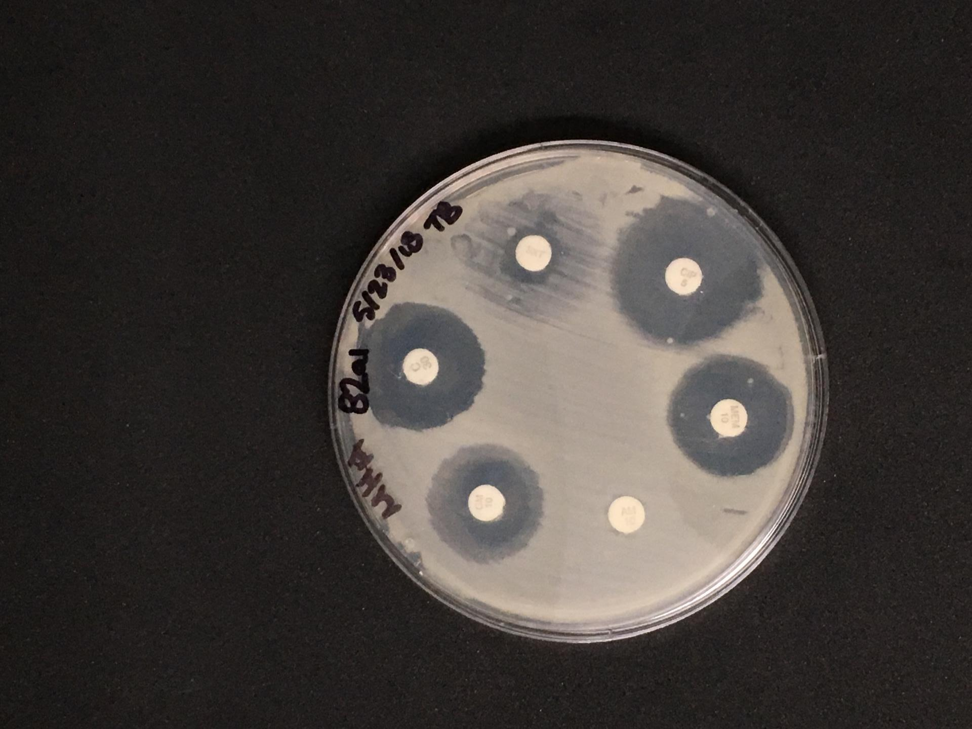 This photo shows a disc diffusion test, where each disc contains a different antibiotic. The discs covered in growing bacteria contain bacteria that are resistant to antibiotics. / Credit: Taylor Brown/Northwestern University