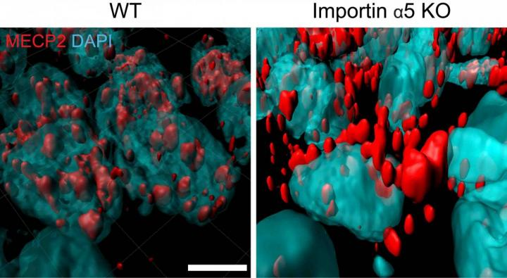 In mice without importin alpha-5 (right), MeCP2 (red, known to affect anxiety behaviors), remains outside of nuclei (blue) of brain neurons, instead of getting inside nuclei, like in regular mice (left). / Credit: Weizmann Institute of Science