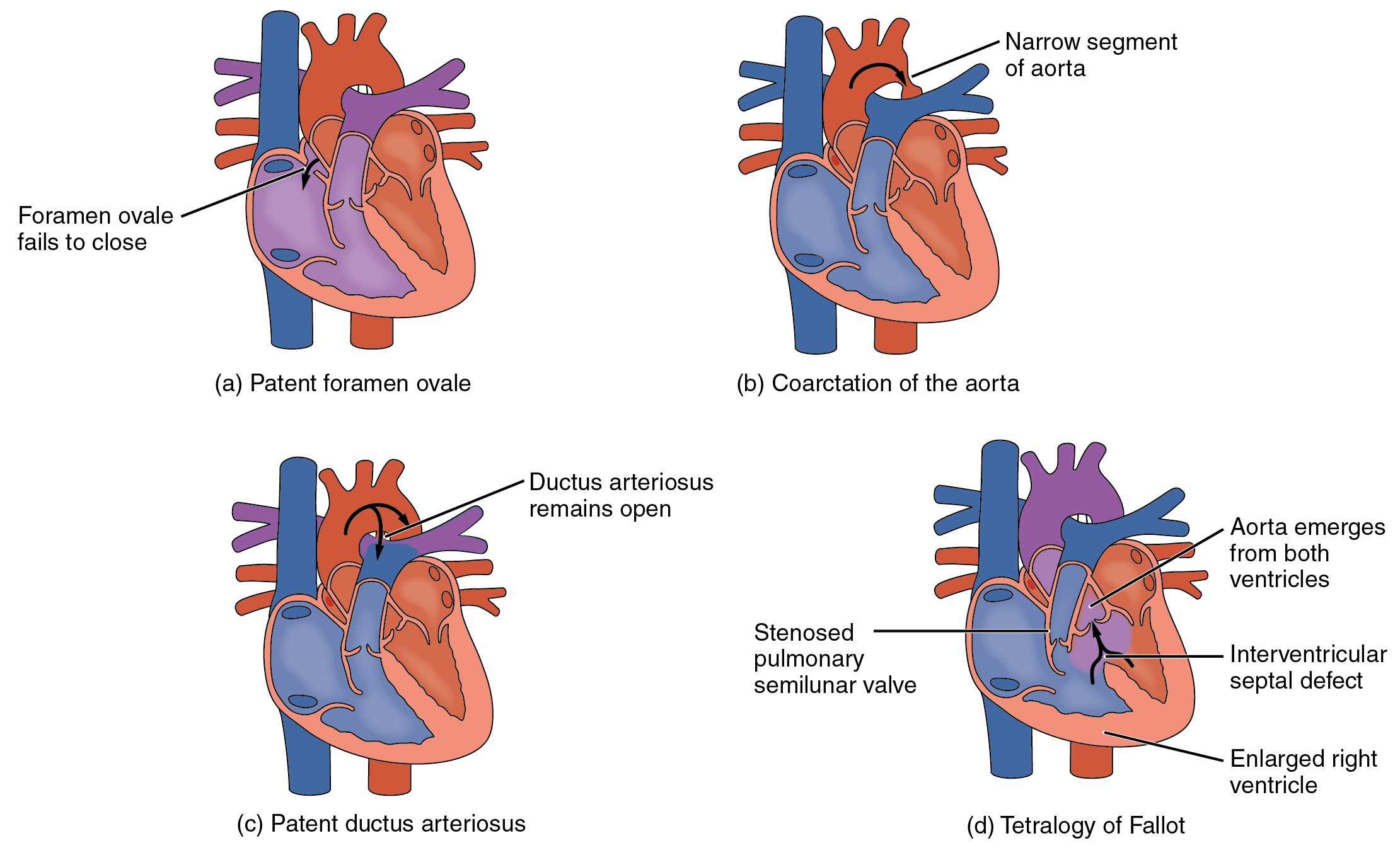 Type of Congenital Heart Defects