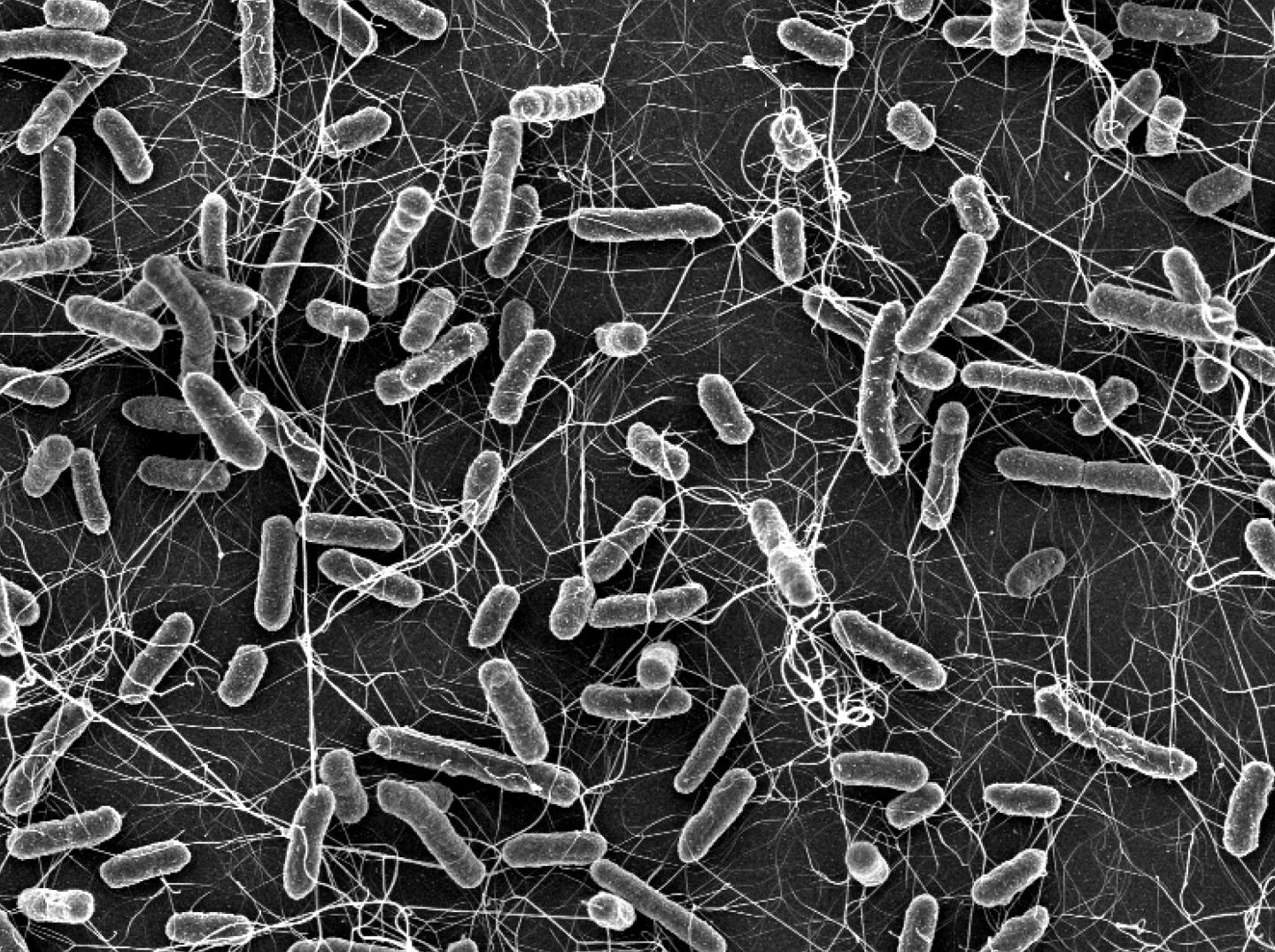 Salmonella causes diarrhoea in animals and humans. These bacteria become a particular public health concern if they are resistant to antibiotics (electron microscopic photograph). / Credit: ETH Zurich / Stefan Fattinger