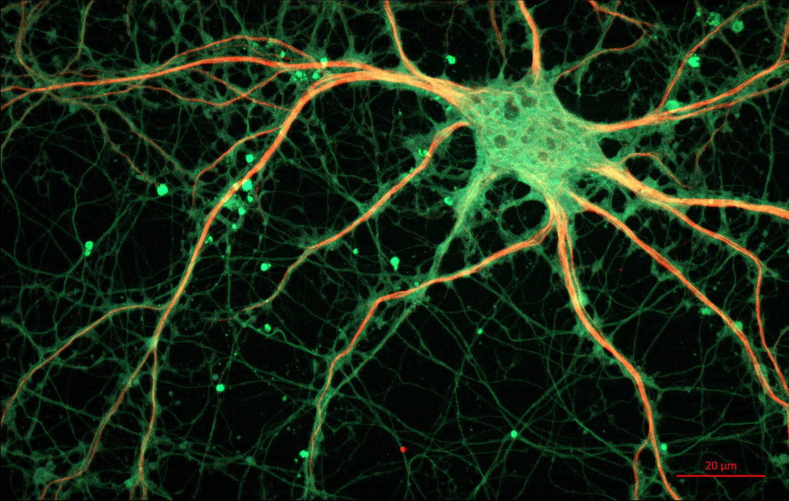 Fluorescent Microscopy image of a neuronal cell. Credit: ZEISS Microscopy