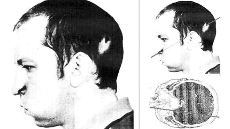 Photo of Bugorski's facial injury (Curiosity)