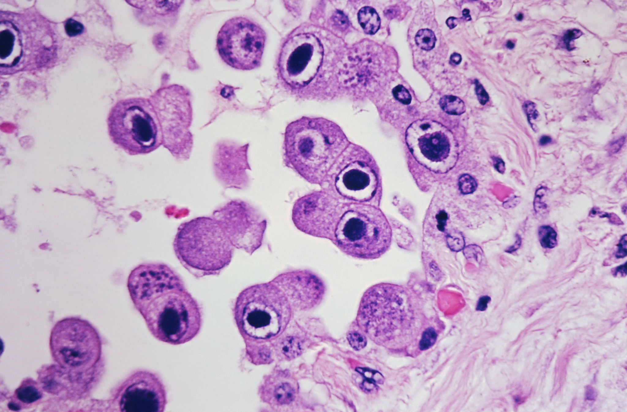 CMV infected pneumocytes. Source: Dr. Yale Rosen