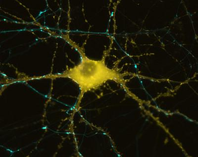 A human neuron. / Credit: UC San Diego School of Medicine