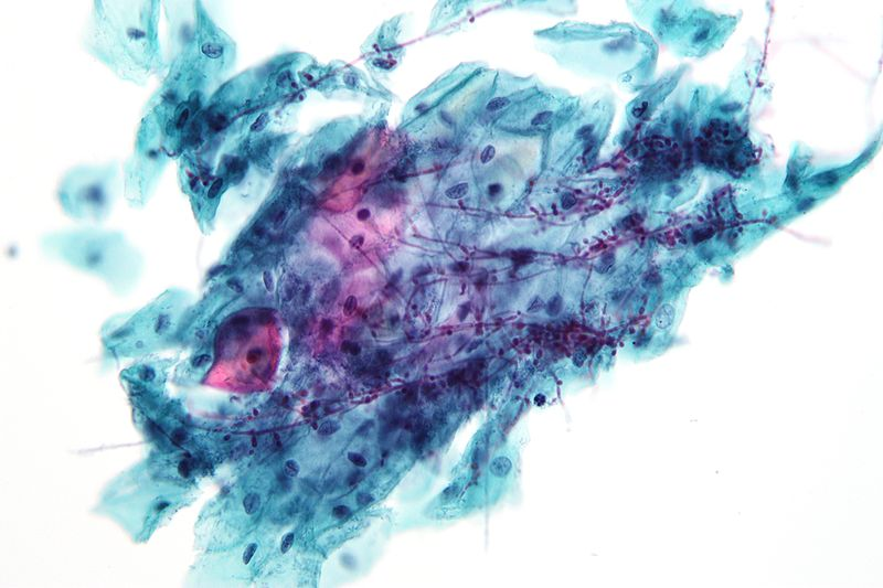 Micrograph showing candida. Credit: Wikimedia user Nephron