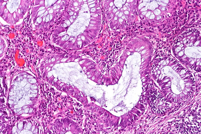 Histopathology image of chronic inactive ulcerative colitis. Credit: CoRus13
