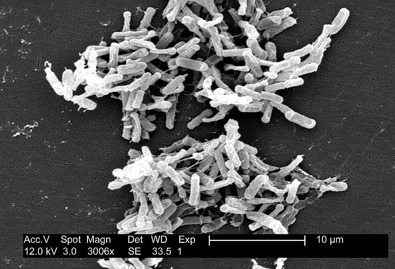 Scanning electron micrograph of Clostridium difficile bacteria from a stool sample.