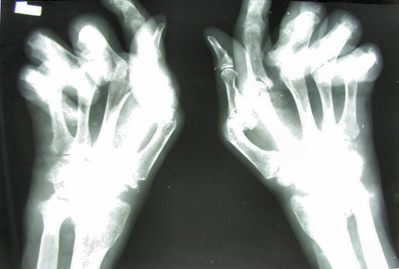 Rheumatoid arthritis: X-ray image of the hand with large changes in destructive arthritis.